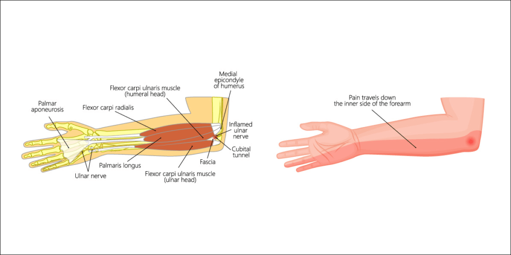 compression or irritation of the ulnar nerve within the cubital tunnel