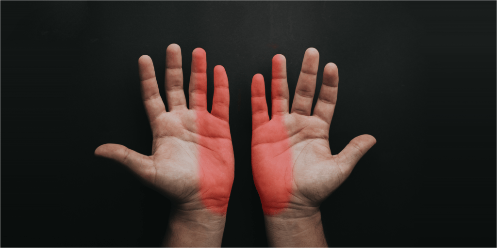locations of cubital tunnel syndrome symptoms