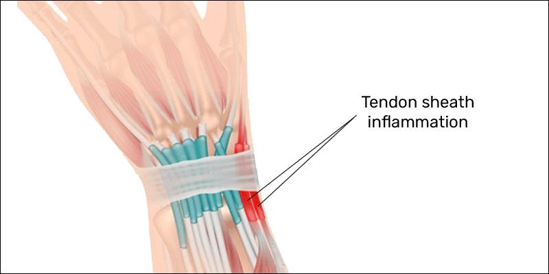 tendon sheath inflammation