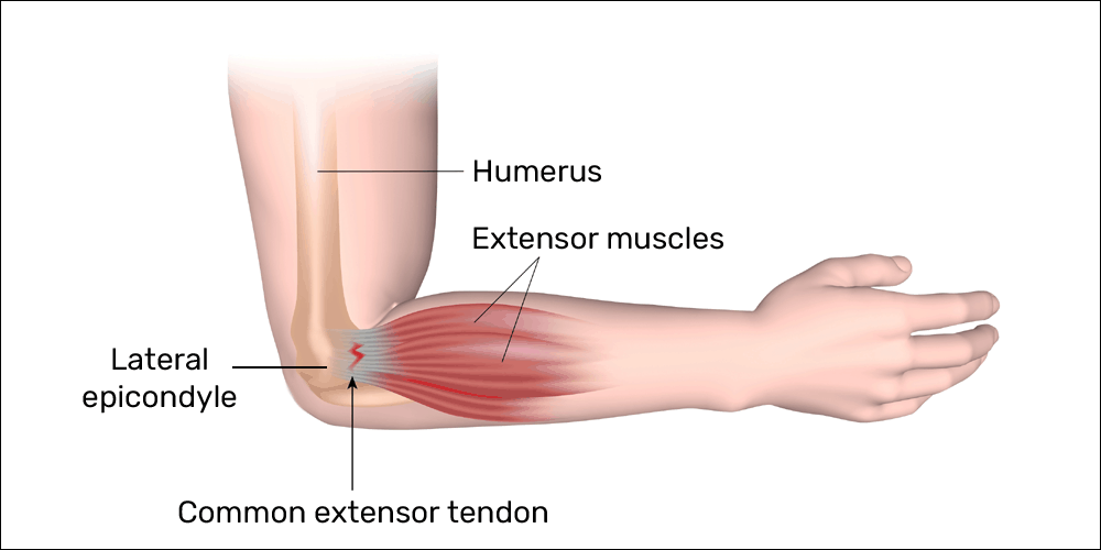 Mouse elbow tendinopathy and anatomy