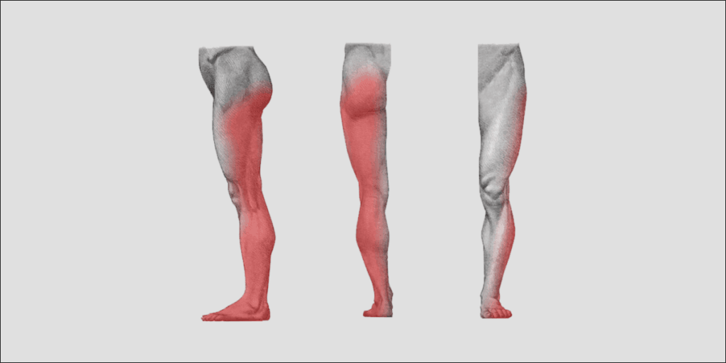 area of sciatica in legs