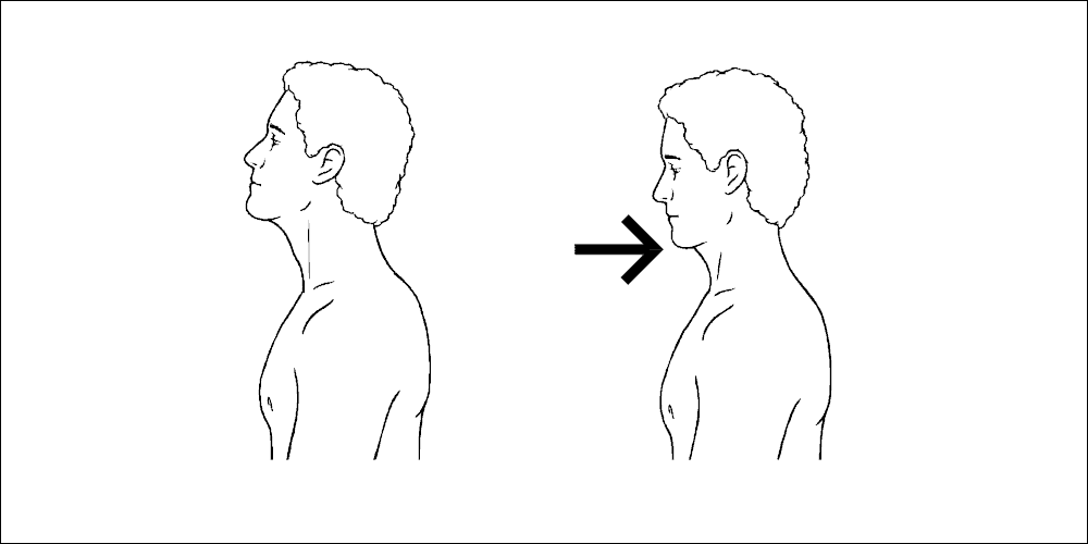 Upper crossed syndrome chin tuck