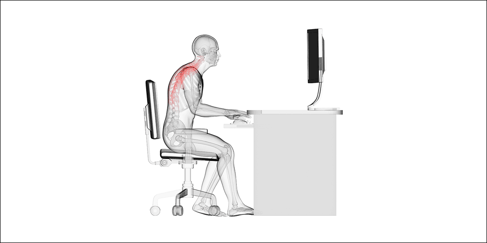 Neck pain from gaming poor posture