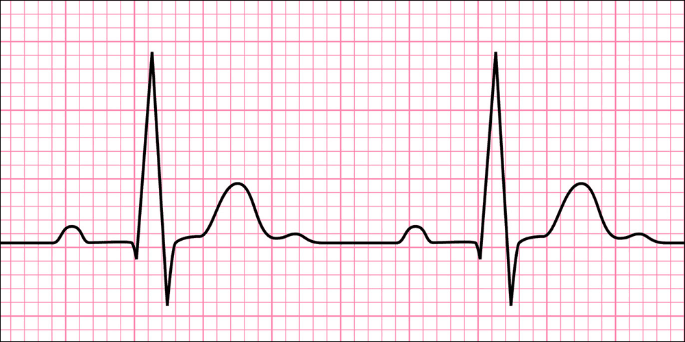 resting heart rate graph