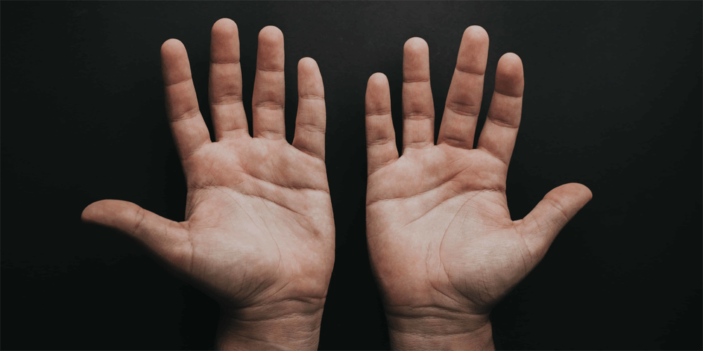 palms of hands