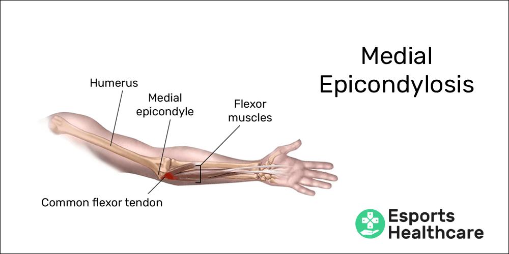 Medial epicondylosis