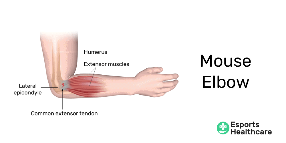 Mouse elbow